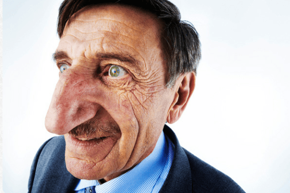 Mehmet-Ozyurek-longest-nose-in-world
