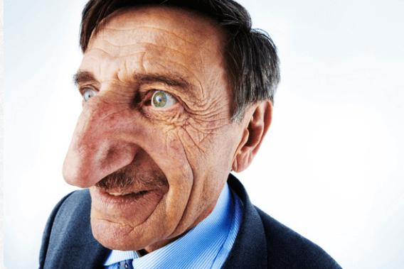 Mehmet-Ozyurek-longest-nose-in-world